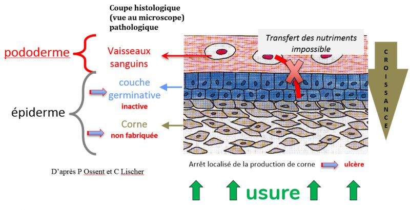Ulcère causes chéma 2