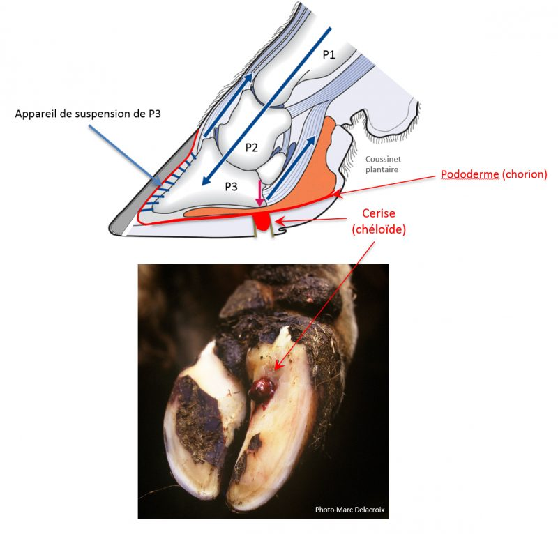 Ulcère causes chéma 3